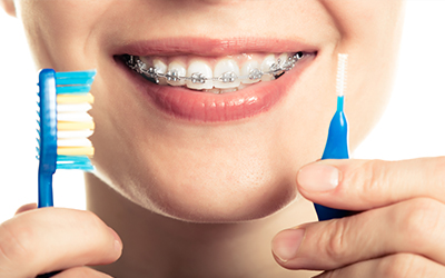 woman smiling with braces on and a toothbrush and a cleaning brush for braces in her hand