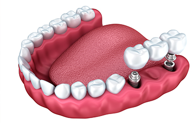 An image of a mouth and dental implants